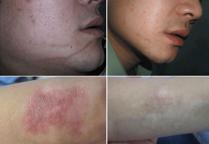 Conheça as causas e como tratar a acne aos 30 anos
