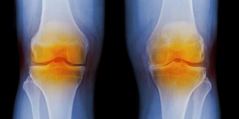 Artrose tem cura? Conheça 7 Tratamentos para aliviar os sintomas e retardar a progressão da doença