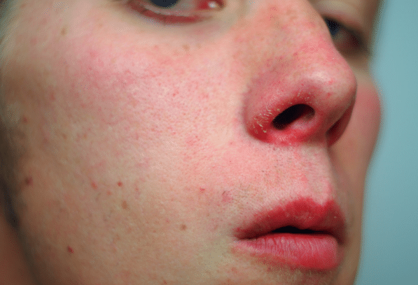Resultado de imagem para nariz ressecado