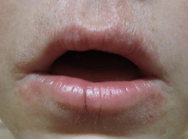 tratamento-caseiro-para-queilite-angular-boqueira