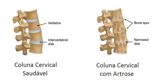 artrose-na-coluna-cervical