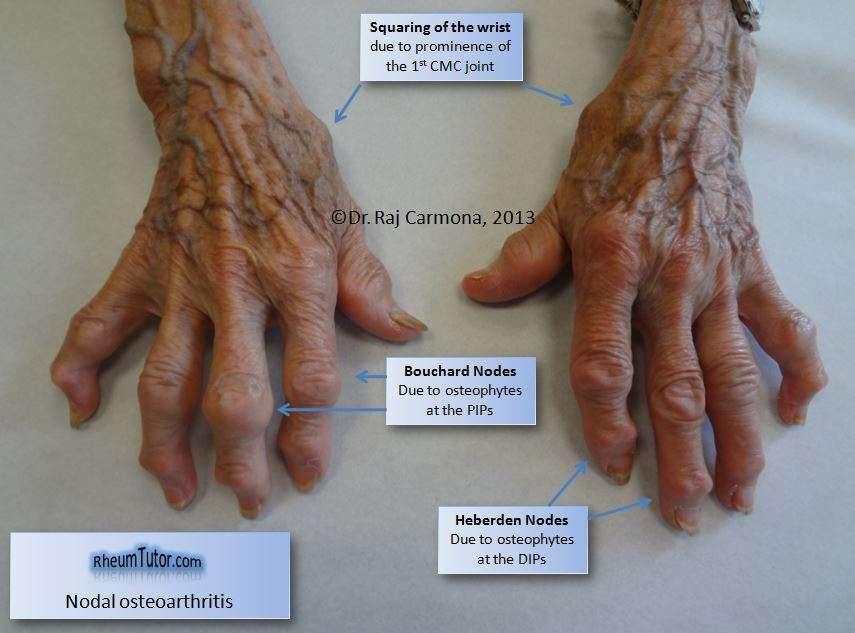artrose-nas-maos
