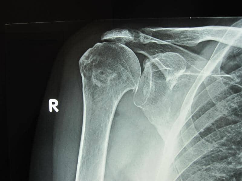 artrose-no-ombro-raio-x