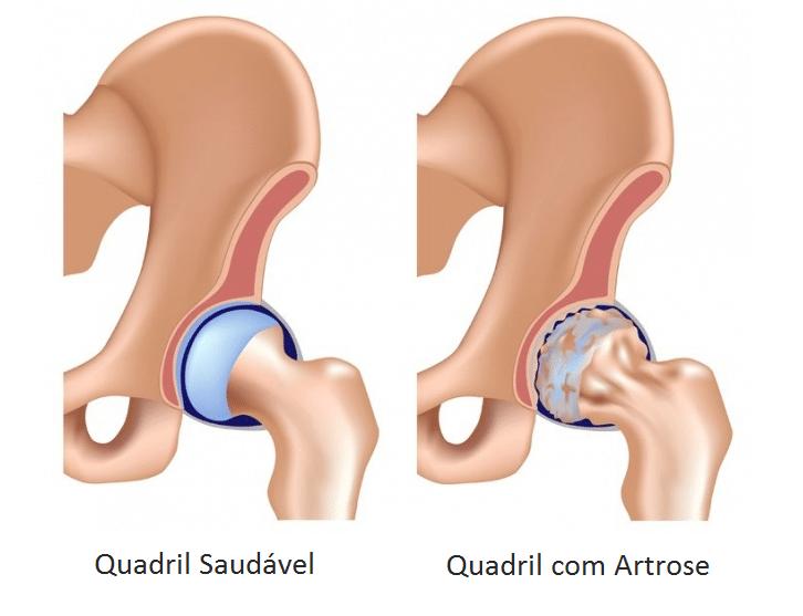 artrose-no-quadril