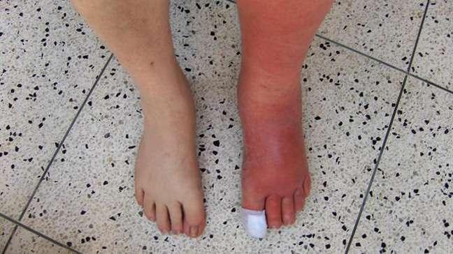 celulite-infecciosa-na-perna-e-pe