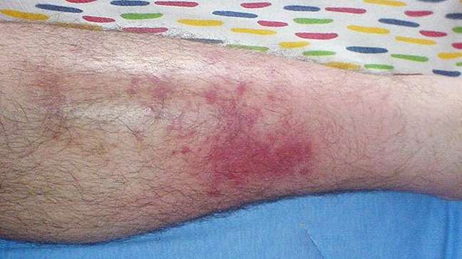 celulite-infecciosa-na-perna