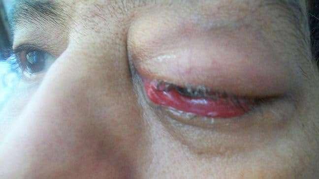 celulite-infecciosa-no-olho
