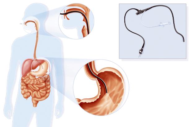 exames-para-diagnosticas-o-refluxo-gastroesofagico