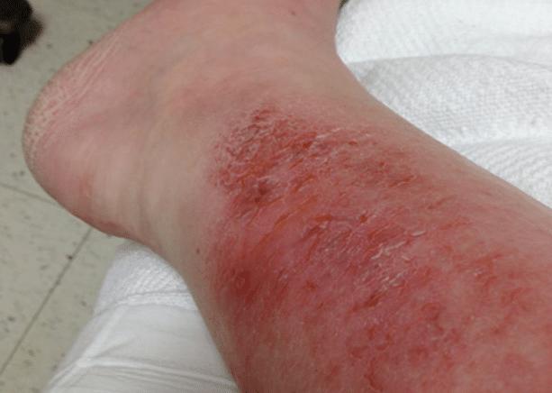 feridas-causadas-pela-celulite-infecciosa