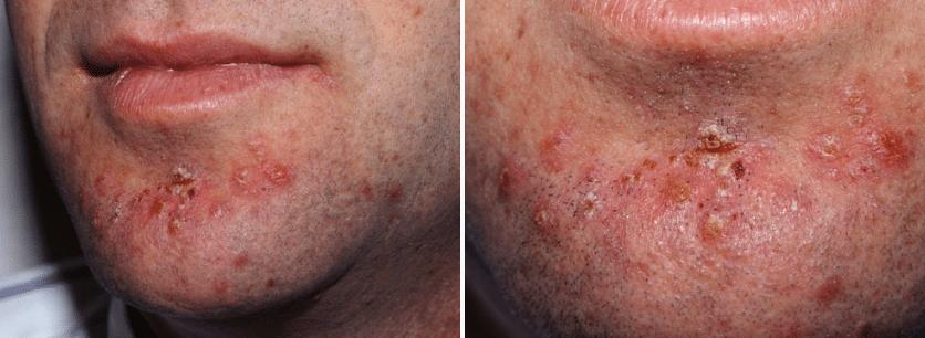 foliculite-estafilococica-da-area-da-barba-imitando-acne