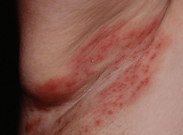 foliculite bacteriana nas axilas
