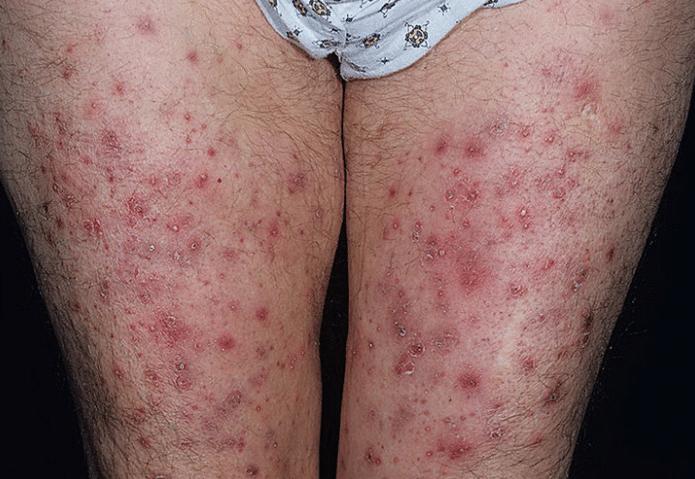 foliculite-nas-pernas