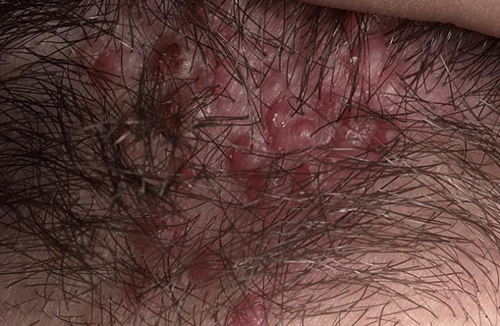 foliculite-no-couro-cabeludo