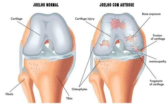 foto-de-joelho-com-artrose