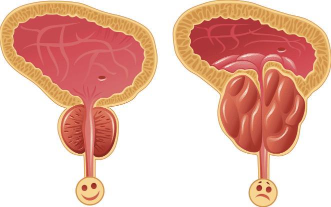 15 Tratamentos Caseiros para Próstata Aumentada: Sintomas e Causas