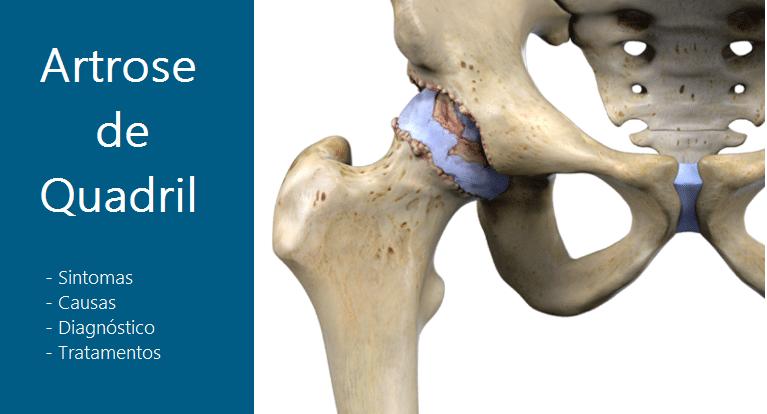 Artrose De Quadril, Causas, Tratamentos, Sintomas E Diagnóstico