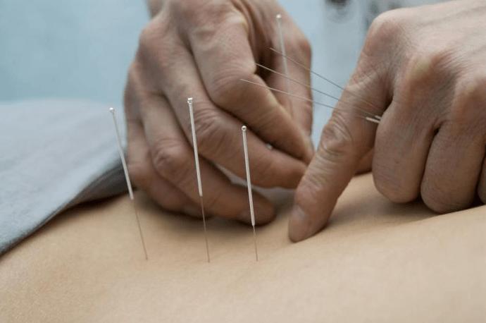 A Acupuntura Pode Ser Mais Eficaz Do Que A Terapia Convencional No Tratamento Da Dor Lombar
