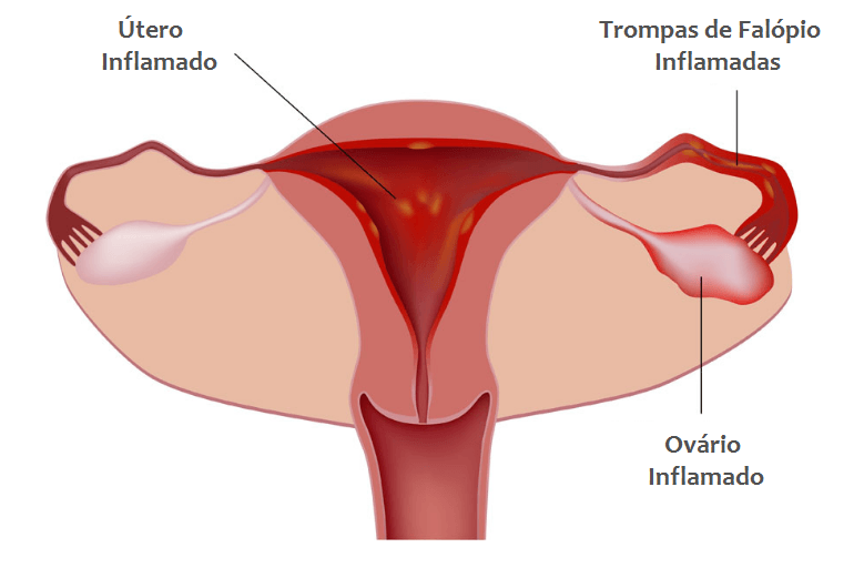 Foto De Doença Inflamatória Pélvica Onde Se Pode Observar A Inflamação No útero, As Trompas De Falópio E O Ovário Inflamado