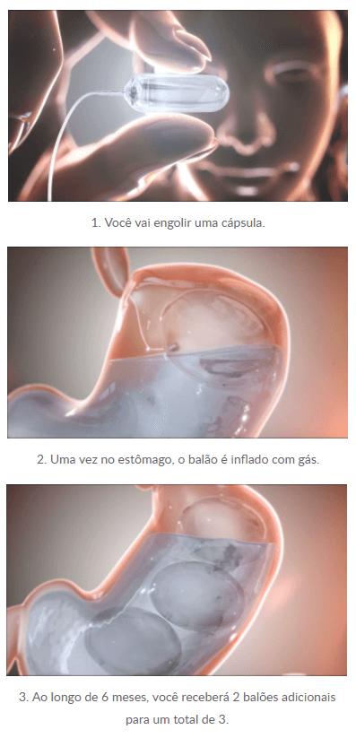 ENGOLINDO O BALÃO OBALON