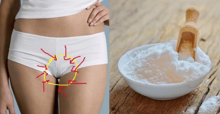 Lave A Sua Vagina Com Bicarbonato De Sódio E Acabe Com O Odor Vaginal A Peixe Podre