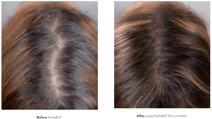 Nutrafol Antes E Depois De 3 Meses