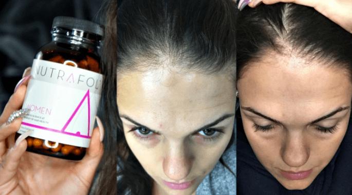 Resultados Antes E Depois De Usar O Suplemento De Vitaminas Para O Cabelo Nutrafol