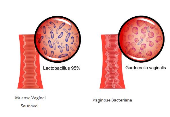 Vaginose Bacteriana