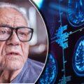 25 Curas Naturais Da Doença De Alzheimer Que Pode Levar A Um Melhor Estilo Vida Entre Idosos