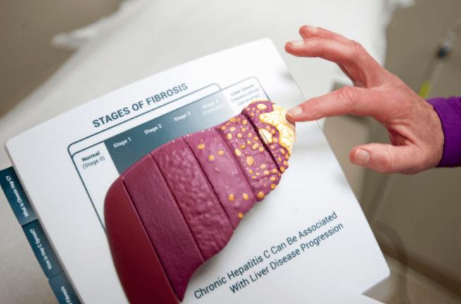A Hepatite C Crónica é Uma Doença Grave E O Seu Desenvolvimento Pode Levar A Doença Hepática Crónica, Cirrose (cicatrização De Tecido) E A Morte, De Acordo Com O CDC.