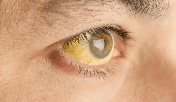 Olhos E Pele Amarelados (icterícia) São Um Dos Principais Sintomas De Hepatite C