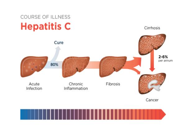 A Hepatite C Quando Não Tratada Pode Dar Origem Ao Desenvolvimento De Câncer Do Fígado
