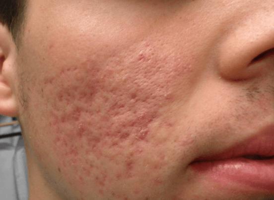 Foto De Adolescente Com Cicatrizes De Acne Na Bochecha (rosto)