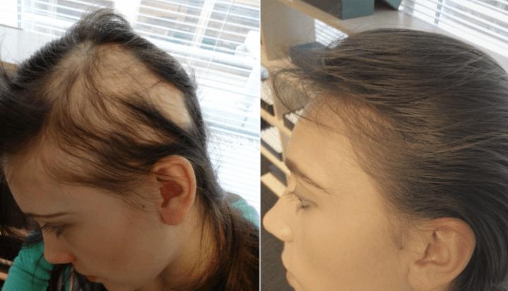 Foto De Mulher Com Alopecia Areata Antes E Depois