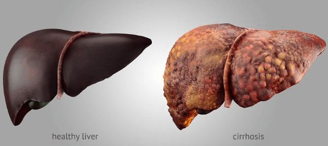 Imagem De Fígado Saudável E Fígado Com Cirrose