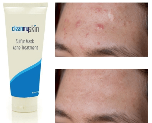 Mascara De Enxofre Para Acne Antes E Depois