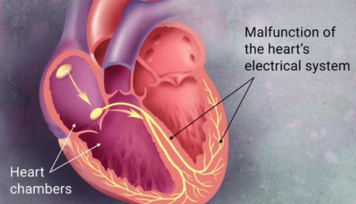 Causas De Arritmia Cardíaca