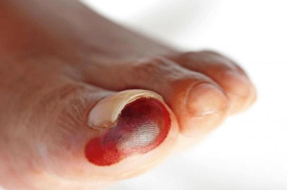 Coágulo Sanguíneo No Pé