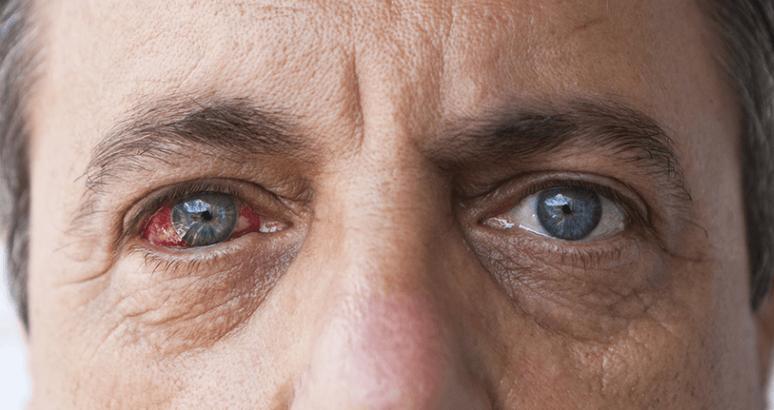 Sinais e Sintomas de Doença Ocular Diabética