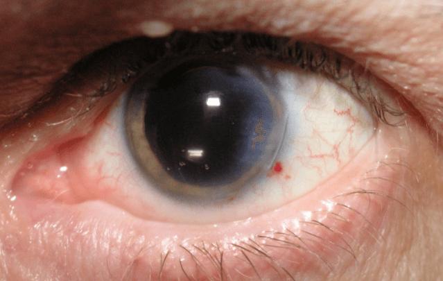 Efeitos Colaterais E Os Riscos Da Cirurgia Ocular A Laser