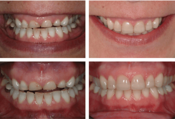 Foto De Bruxismo, Desgaste Dentário Antes E Depois Do Tratamento