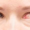 Hipertensão Arterial Pode Provocar Lesões Oculares Significativas, Até Mesmo Cegueira. Retinopatia Hipertensiva é O Dano à Retina De Pressão Arterial Elevada.