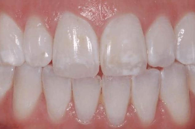 Os Primeiros Sinais De Cárie Dentária Pode Aparecer Como Manchas Brancas Nos Dentes