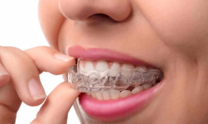 Placa Oclusal, Aparelho Removível Para Proteger Os Dentes Do Ranger Dos Dentes Bruxismo