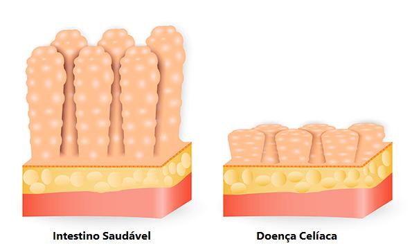 A Imagem Ilustra O Intestino Saudável à Esquerda E A Doença Celíaca à Direita