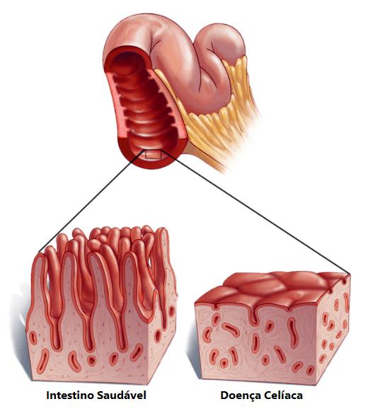 6 Possíveis Causas de Doença Celíaca: Alimentos que Contenham Glúten são Proíbidos
