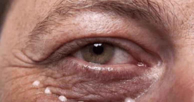 Como Eliminar as Rugas Debaixo dos Olhos: 19 Remédios Caseiros Eficazes!