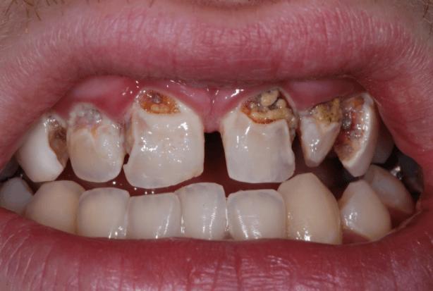 Cáries Nos Dentes Da Frente