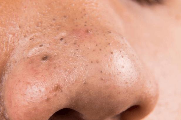 18 Remédios Caseiros para Remover Cravos (Pontos Pretos) da Pele