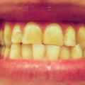 Desgaste Dos Dentes Causado Pelo Ranger Dos Dentes, Bruxismo