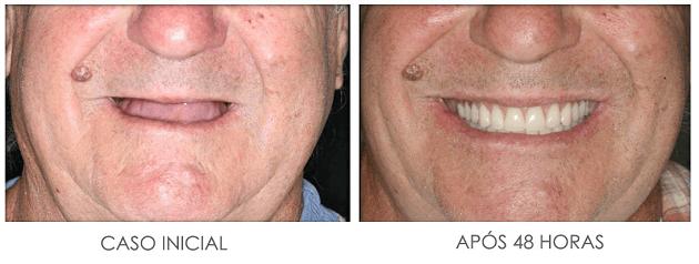 Implante Dentário Guiado por Computador (Sem Cortes)